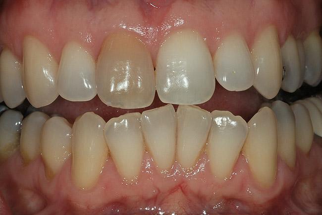 single dark tooth 1