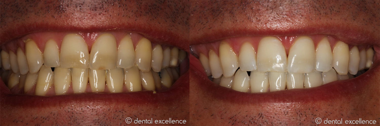 Dental Excellence Take Home Dental Excellence