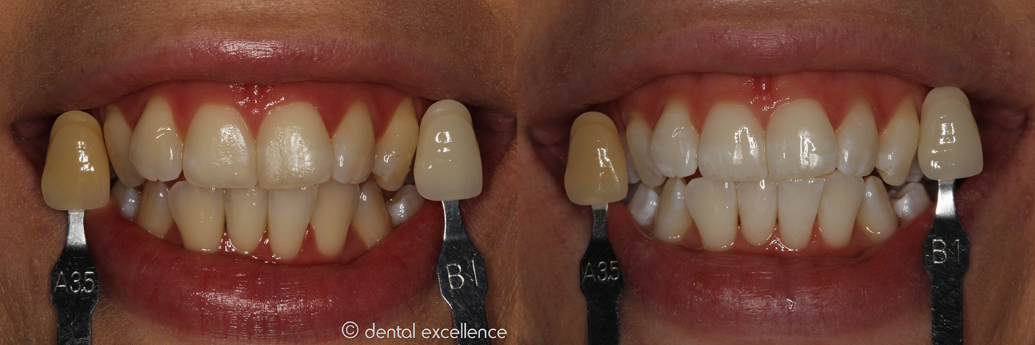 Dental Excellence In Chair Teeth Whitening In Perth In Office
