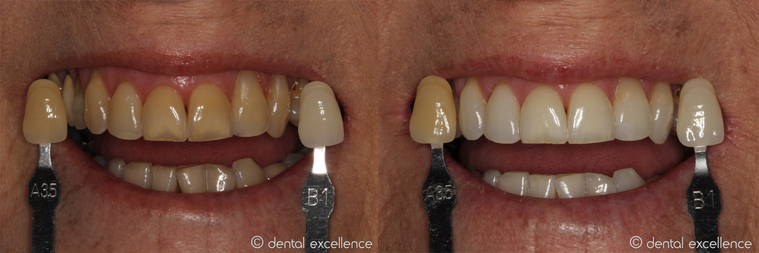Dental Excellence| Take Home - Dental Excellence